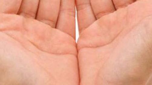 Penyebab Kulit Tangan Mengelupas dan Cara Mengatasinya
