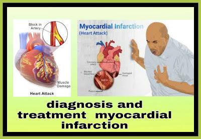 Treatment-of-a-myocardial-infarction