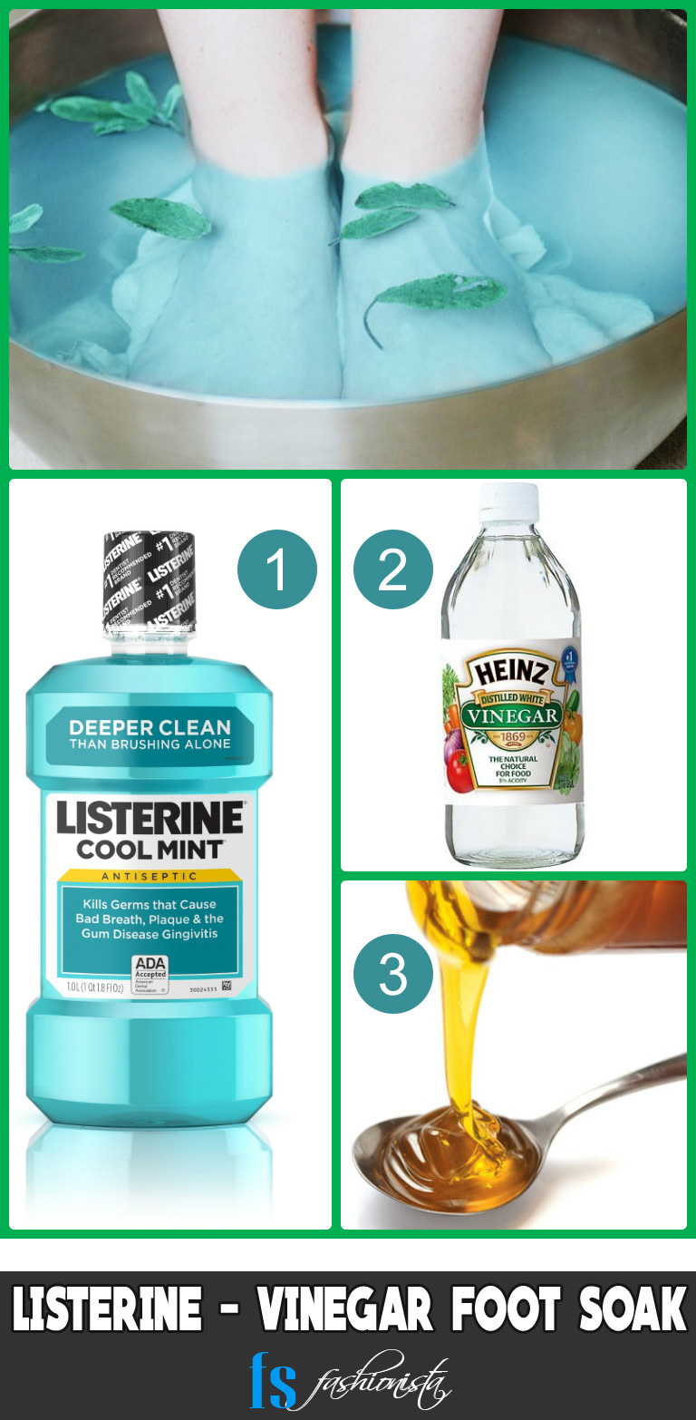 Listerine Vinegar Foot Soak for toenail fungus