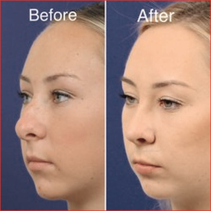 facial plastic surgeon near me