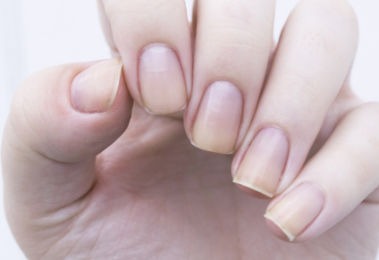 #Astonishing DIY To Get Rid Of Cuticles Problems And Get Pretty Strong Nails At Home Without Manicure#Health