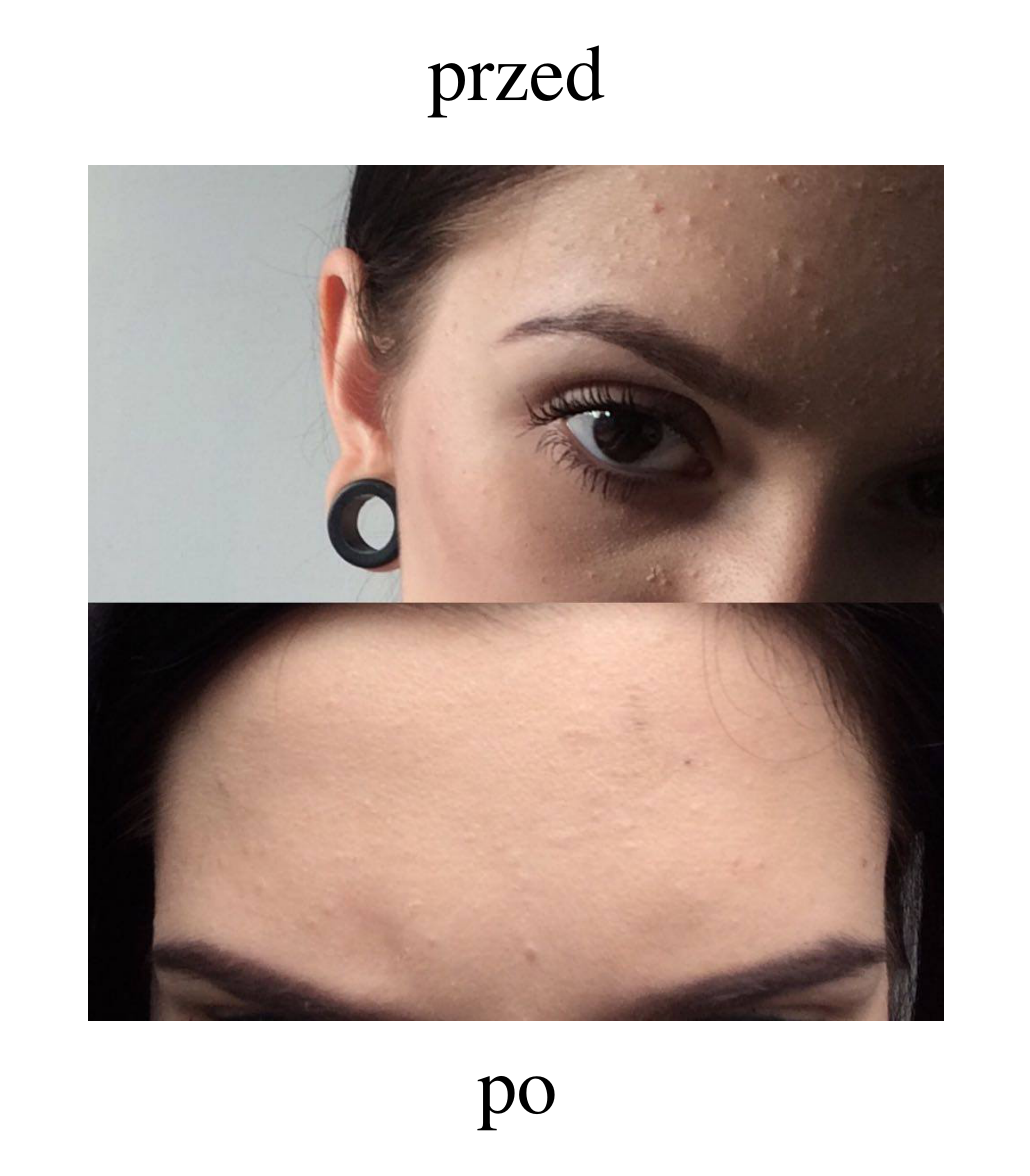 wypryski na twarzy, kosmetyki na trądzik, jak walczyć z krostkami na twarzy, trądzik przed po, leczenie trądziku