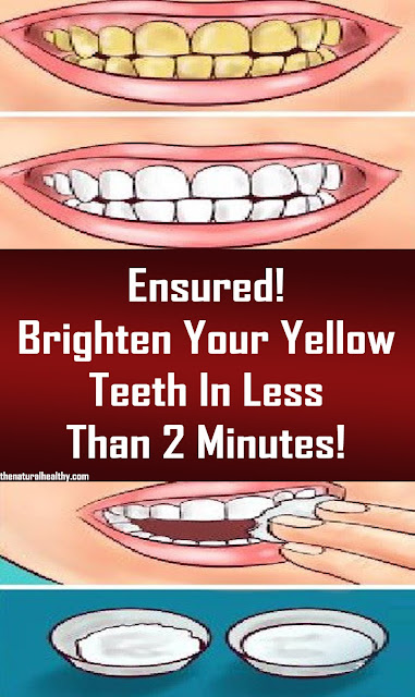 Ensured! Brighten Your Yellow Teeth In Less Than 2 Minutes! #Health #Remedies