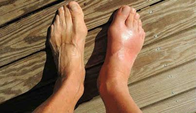 Ilustrasi penumpukan kristal asam urat di kaki