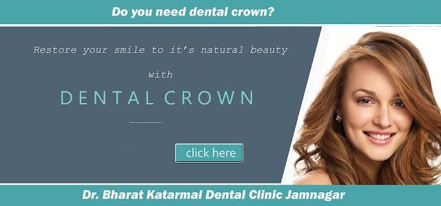 dental crown by Jamnagar dentist Dr. Bharat Katarmal