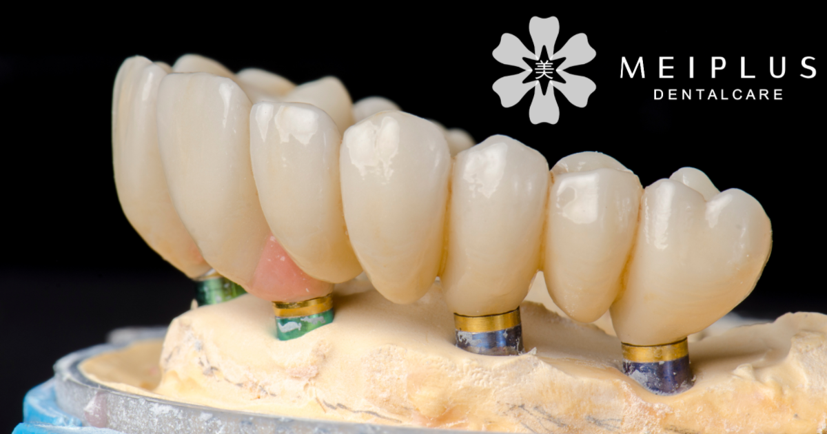 whole mouth dental implant all on 4 dental implants