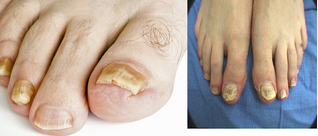 An affected toenails