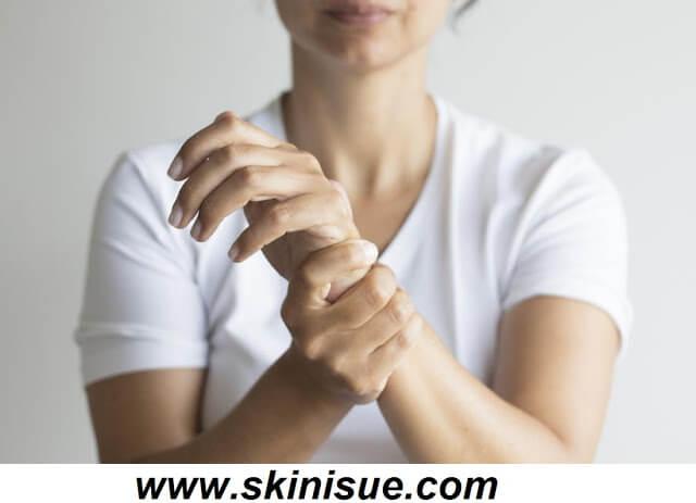Burning Sensation on Hand Skin