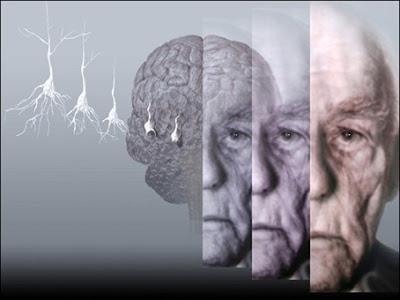 Ηγουμενίτσα: Σεμινάριο για τη βελτίωση της περίθαλψης των ασθενών με άνοια (νόσο του Alzheimer)
