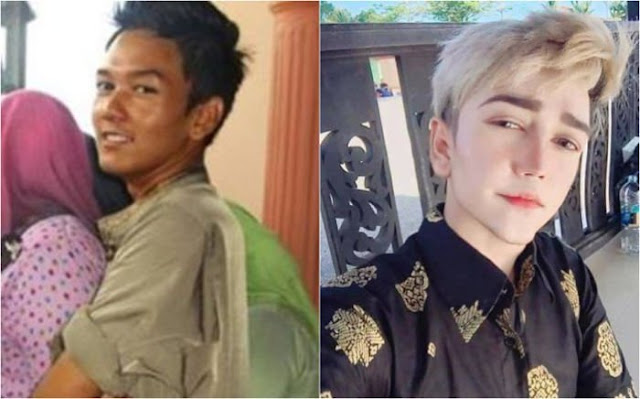 This Young Man Was Under Fire After He Spent Thousand Dollars For Plastic Surgery To Look Like An Anime Character!