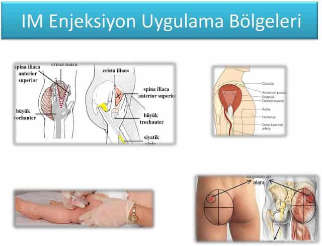İntramüsküler enjeksiyon bölgeleri