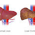 How to keep liver healthy and keep it clean.