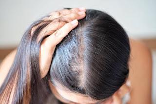 Best tips for prevent hair loss.