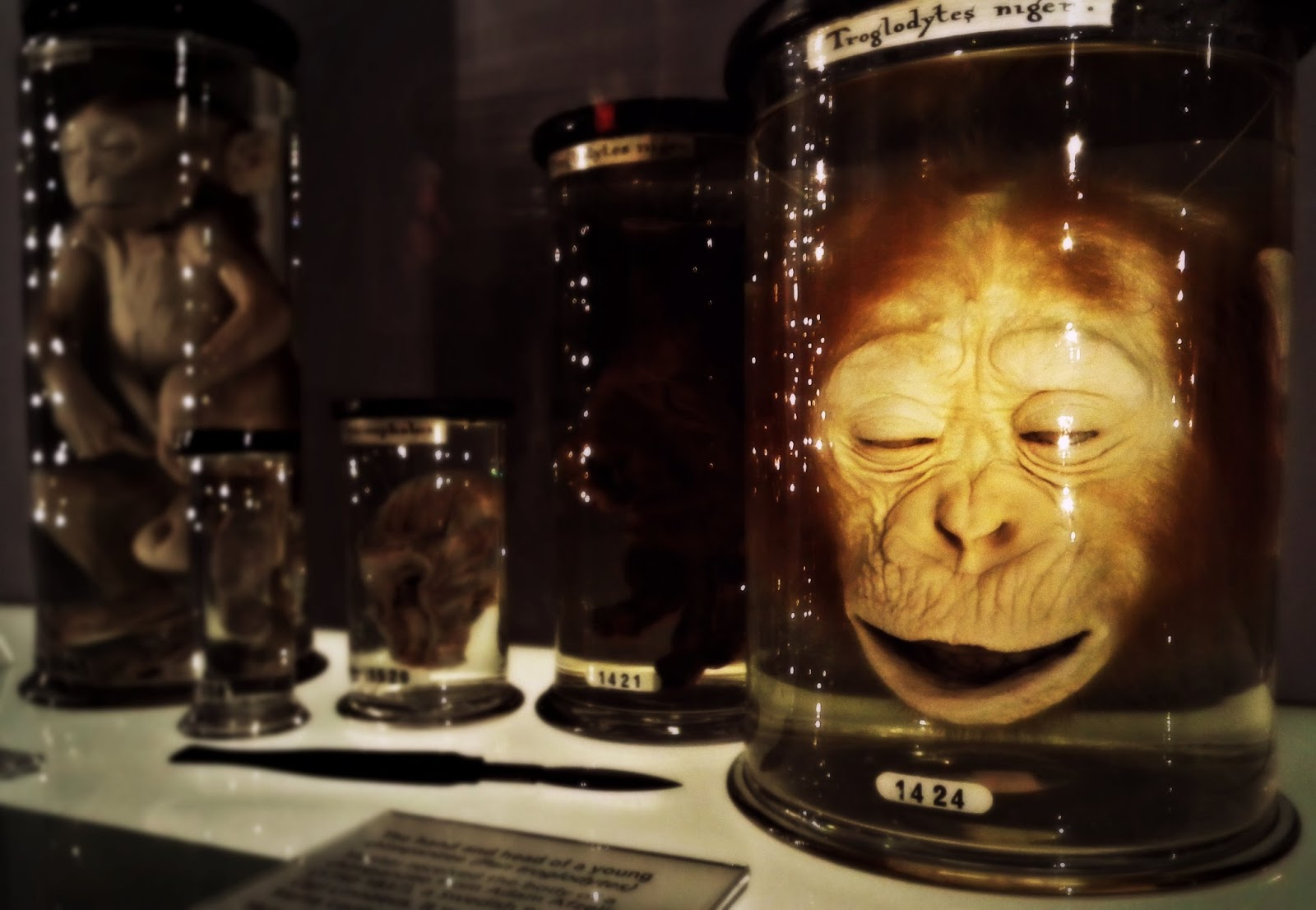 The London Dead The Hunterian Museum Royal College Of