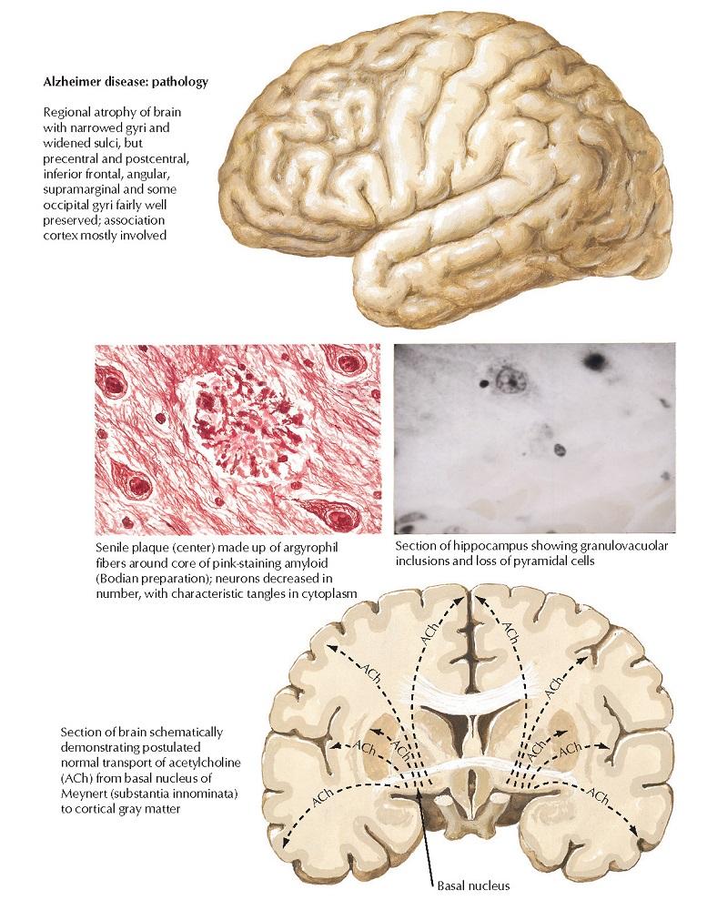 Alzheimer Disease: Cholinergic Involvement and Drugs