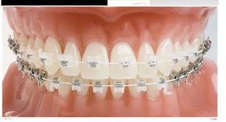 Lo lắng niềng răng có làm răng yếu đi không?