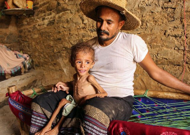 Αναστολή ανθρωπιστικής βοήθειας στην Υεμένη, ελλείψει χρηματοδότησης