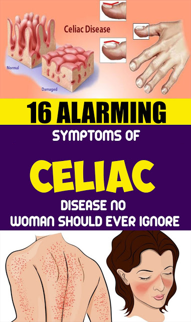 16 Alarming Symptoms of Celiac Disease No Woman Should Ever Ignore