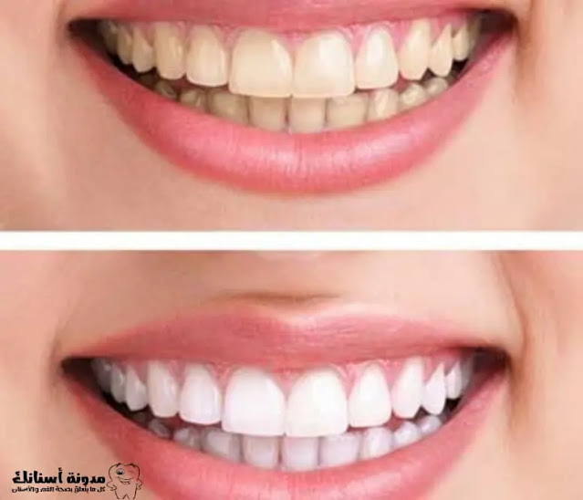 تبيض الاسنان والتحضيرات وطرق العلاج في المنزل.