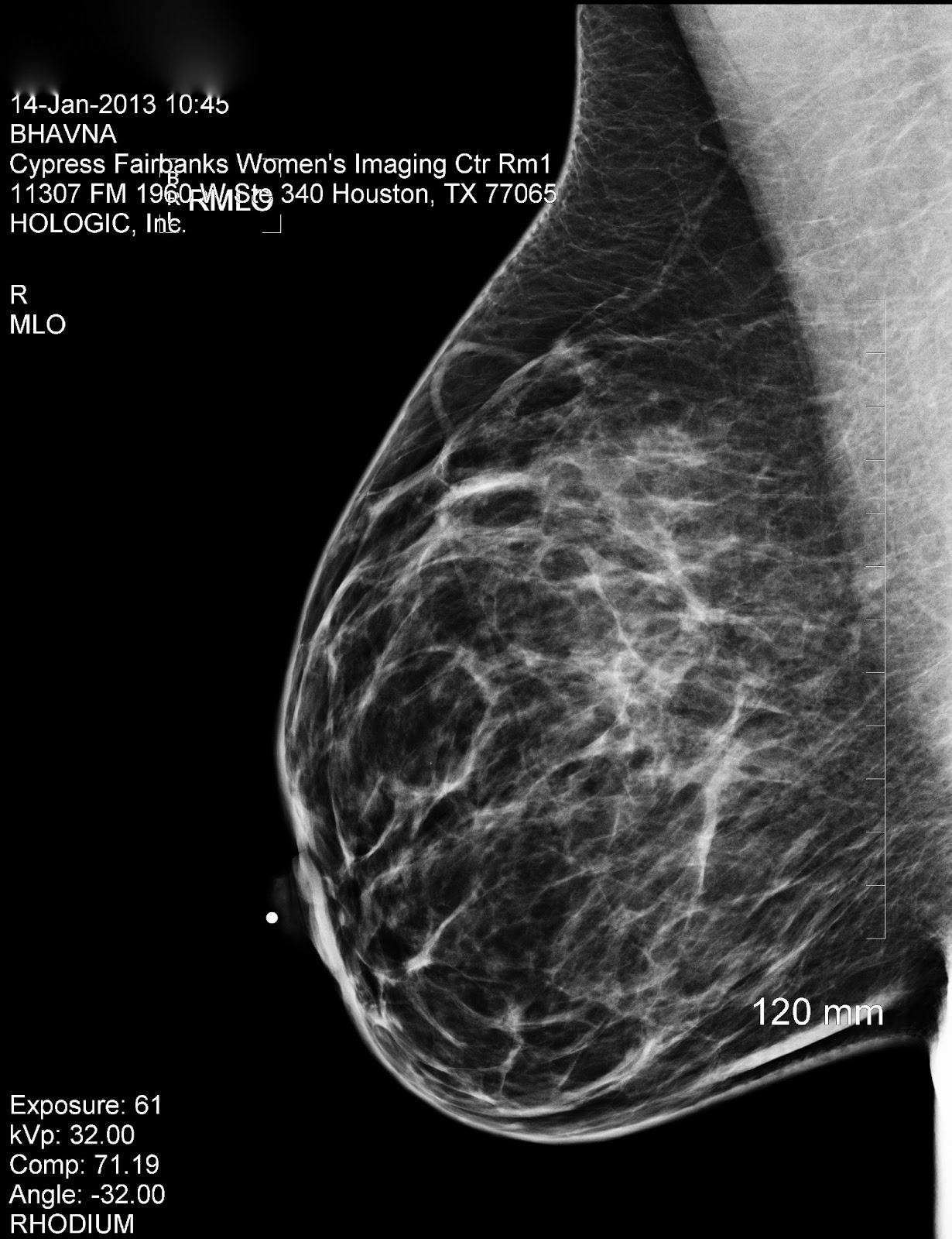 mammogram breast ultrasound jpg 1152x768