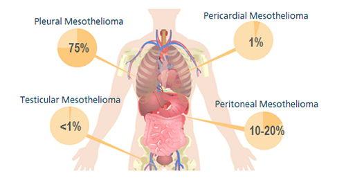 Stage 1 Pleural Mesothelioma