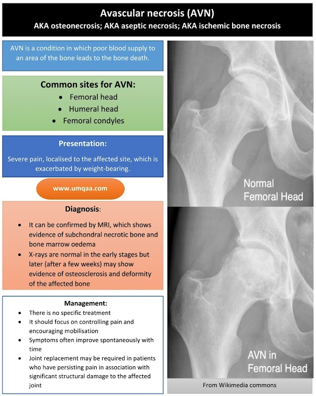 What are the causes of avascular necrosis (AVN) of the femoral head?