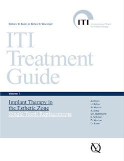 ITI Treatment Guide Vol 1