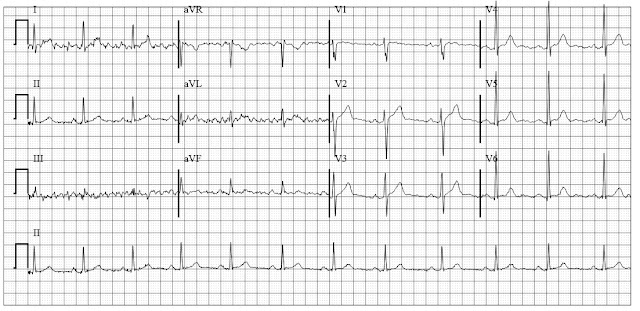 ECG of tremor artifact