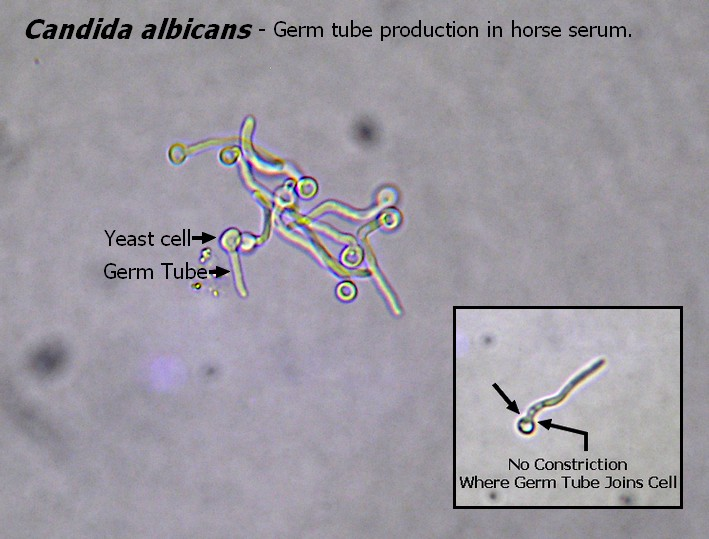 candida albicans under microscope