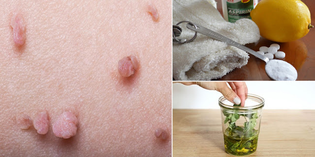 How To Remove Skin Tags By Using Home Remedies