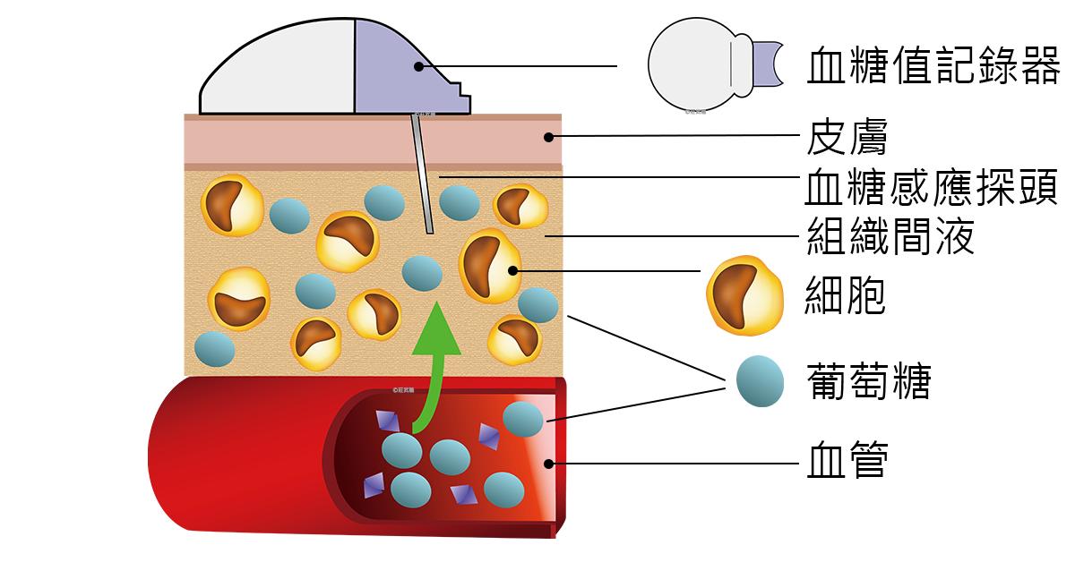 CGMS 連續血糖監測系統原理