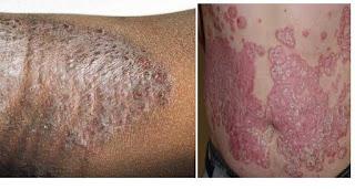 Obat Tradisional Eksim Kering (Dermatitis Atopik)
