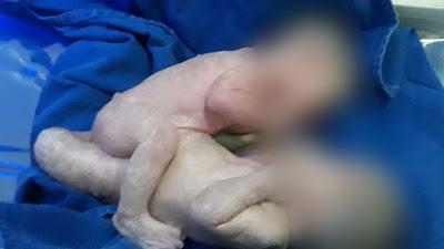 SAJ: Gêmeas siamesas respiram sem aparelho e se alimentam por sonda, informa Hospital de Goiânia