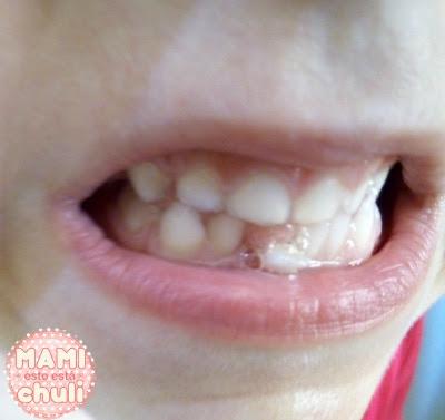 diente_a_punto_de_caer