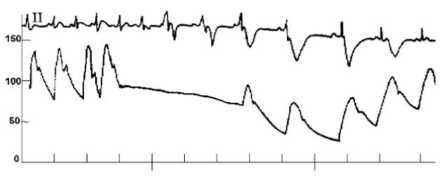 cath data hemodynamic pressure tracing