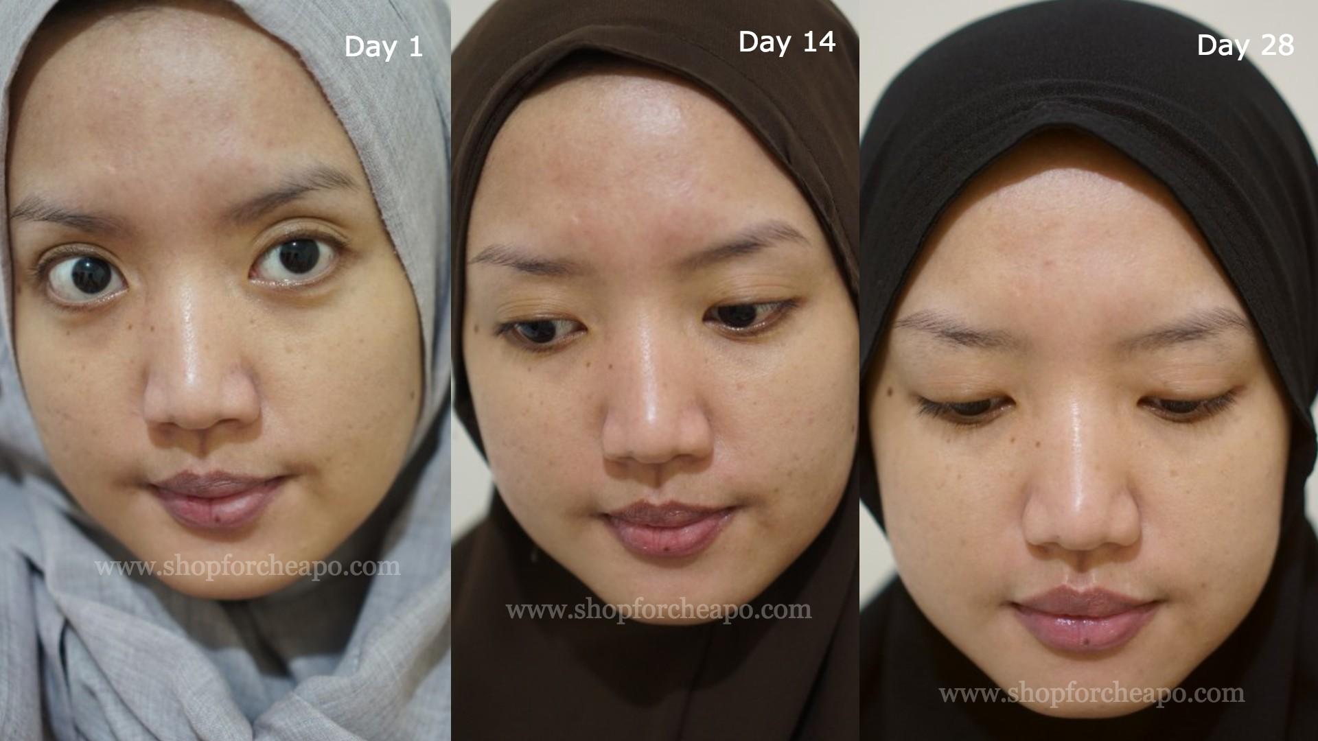 foto full face hari ke 1, hari ke 14, dan hari ke 28