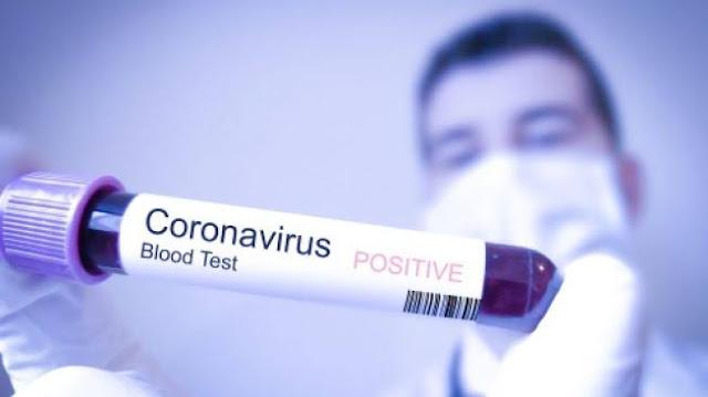 Umat Islam China Sumbang Rp185 M untuk Penanganan Wabah Virus Corona