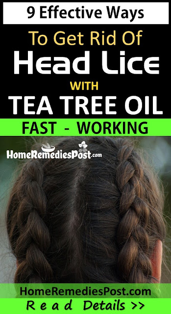 Tea Tree Oil For Lice, Tea Tree Oil For Head Lice, How To Use Tea Tree Oil For Head Lice, Head Lice Treatment With Tea Tree Oil, Head Lice Treatment, How To Get Rid Of Hair Lice, Home Remedies For Head Lice, Tea Tree Oil And Head Lice, Tea Tree Oil Head Lice,