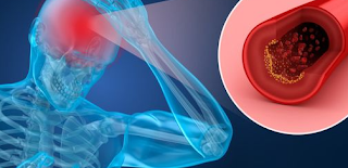 Mengulas 3 Jenis Terapi untuk Perawatan Pasca Stroke