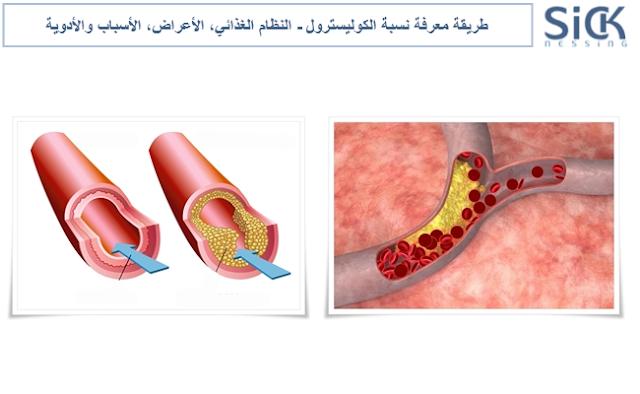 طريقة معرفة نسبة الكوليسترول - النظام الغذائي، الأعراض، الأسباب والأدوية