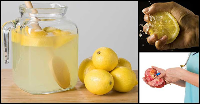 How Lemons Help In Preventing Kidney Stones