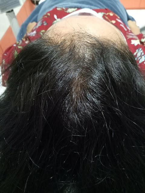 Perangsang rambut tumbuh