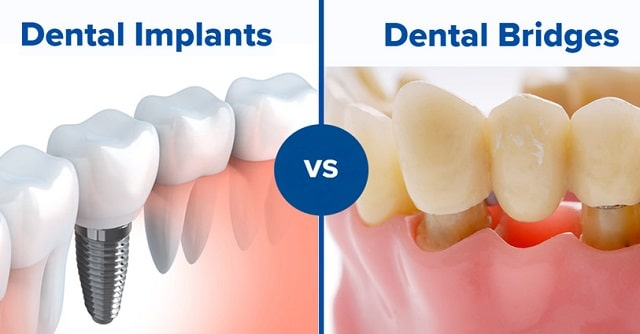 information dental implants vs dental bridges smile