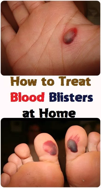How to Treat Blood Blisters at Home