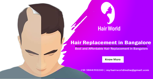 Hair replacement in Bangalore