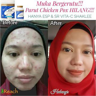 Esp untuk masalah kukit wajah
