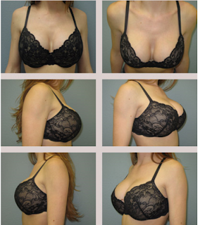 Breast Actives Review Most Effective Way To Get Bigger Breasts