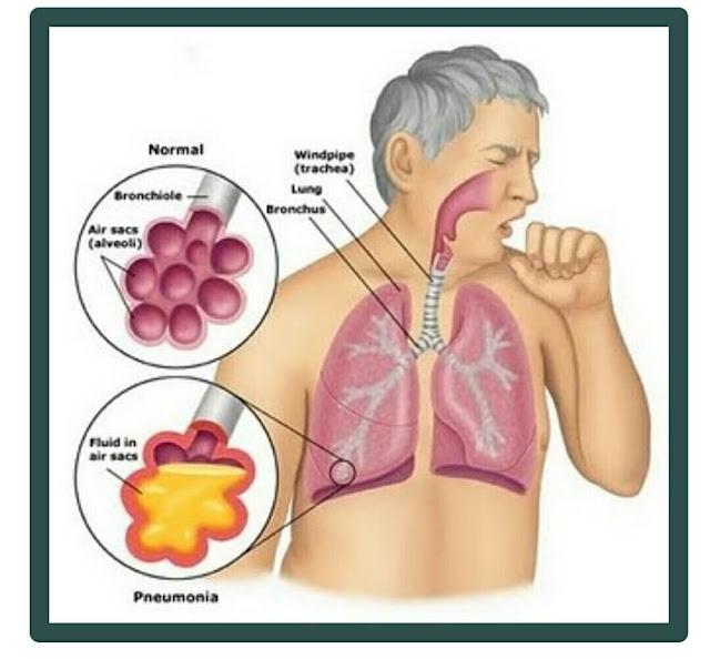 Penyebab dan Cara Mengobati Penyakit Bronkitis Alami