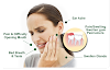 5 Easy Home Remedies That Help Reduce Wisdom Tooth Pain