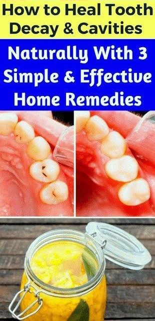 How To Heal Tooth Decay & Cavities Naturally & 3 Simple & Effective Home Remedies